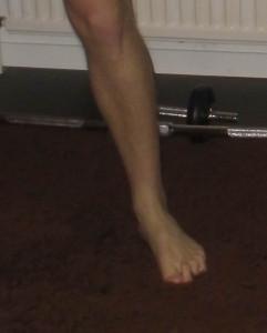 Vacklande fot (pronation) med överspända tår som kompensation